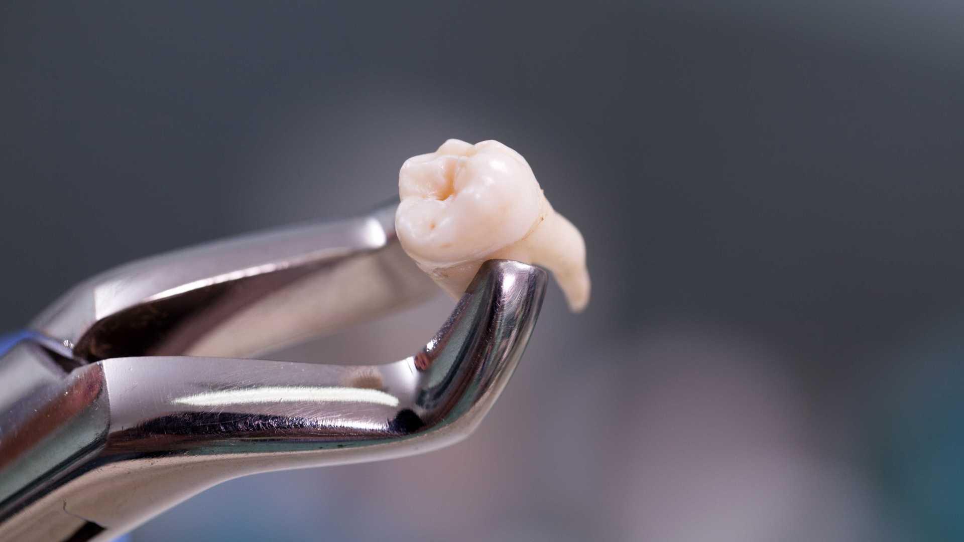dente extraído